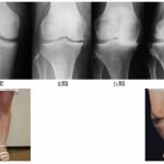 加齢とひざの痛みの話 その2