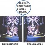 シニアと腰痛と足を組む2